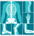 set of xray of human skeletal vector image