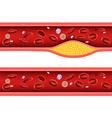 Cartoon of Artery blocked with bad cholestero vector image