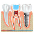 dental implant and real tooth anatomy closeup vector image