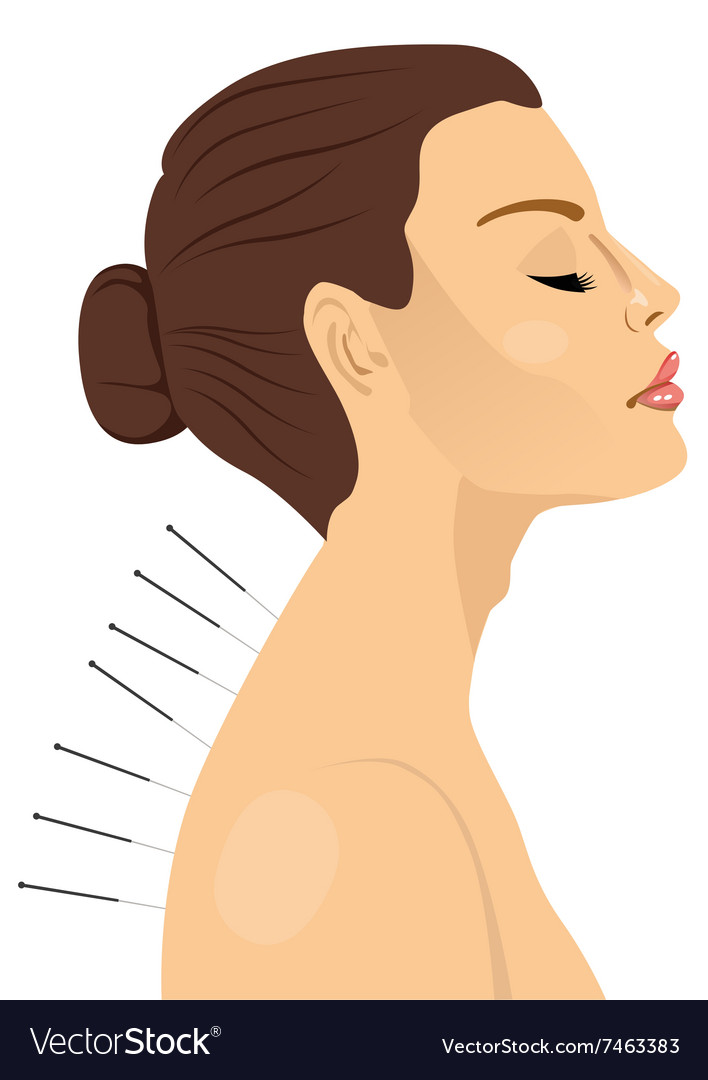 Woman getting an acupuncture treatment vector