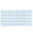 cardio diagram blue vector image