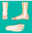 Human leg pain zones vector image