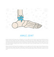 ankle joint replacement vector image