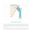 shoulder joint replacement vector image