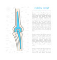 elbow joint prosthesis vector image