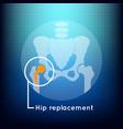 Hip replacement logo icon design vector image