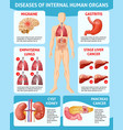 cartoon medical care infographic concept vector image