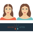Balding woman before anf after hair treatment vector image