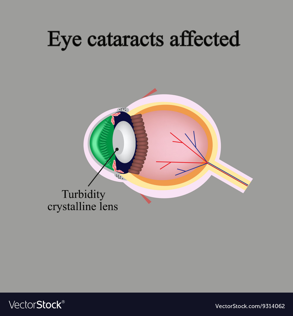 Structure of the eye eye cataracts affected vector