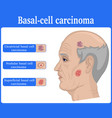 basal cell carcinoma vector image