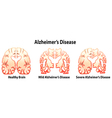 Alzheimers Disease vector image