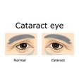 cataract eye vector image
