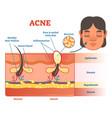 acne diagram vector image