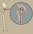 cementless arthroplasty prosthesis vector image vector image