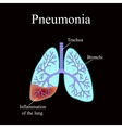 Pneumonia The anatomical structure of the human vector image