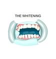 in teeth whitening dentistry vector image