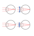 Visually impaired and their correction vector image