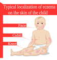 Eczema for a child vector image