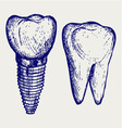 Tooth implant and molar vector image vector image