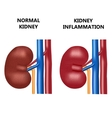 Healthy kidney and kidney infection vector image vector image