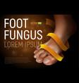 foot fungus vector image
