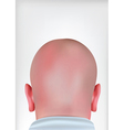 Realistic bald head vector image