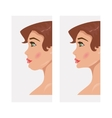 Chin before and after plastic surgery vector image