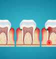 Stages progress caries on human teeth and disease vector image