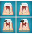 Stages progress caries on human teeth vector image