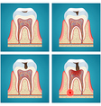 Stages progress dental caries and toothache vector image