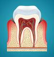 Starting disease gum and caries on human teeth vector image