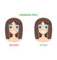 Chemical peel vector image
