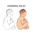 cerebral palsy neurology vector image