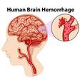 Diagram of human brain hemorrhage vector image vector image