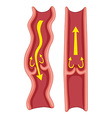 Varicose veins in human body vector image