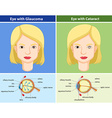 Comparison chart of eyes with and without glaucoma vector image vector image