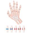 Rheumatoid arthritis diagram on white vector image