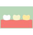 teeth whitening vector image vector image