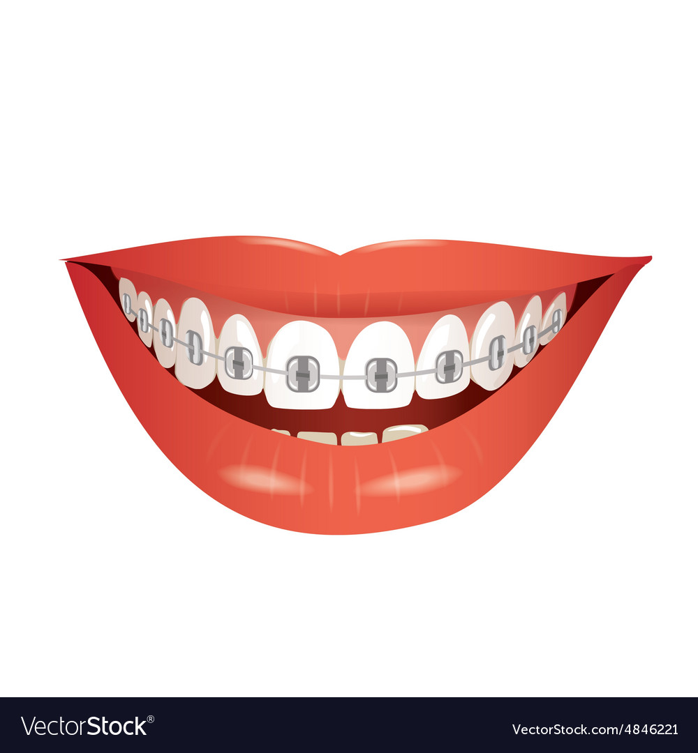 Smiling mouth with braces isolated vector