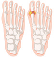 Gout toe in human feet vector image
