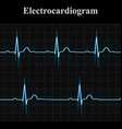 Normal and bradycardial ekg charts vector image