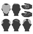 hair loss2 vector image vector image