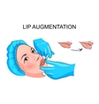 lip augmentation injection vector image