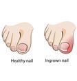 Ingrown nail vector image vector image
