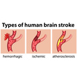 Types of human brain stroke vector image
