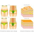 Fat on a waist vector image