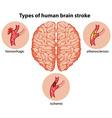 Types of human brain stroke vector image