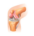 knee joint isolated vector image vector image