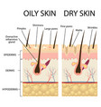 human skin types and conditions vector image vector image
