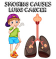 Boy smoking cigarette and lung cancer vector image